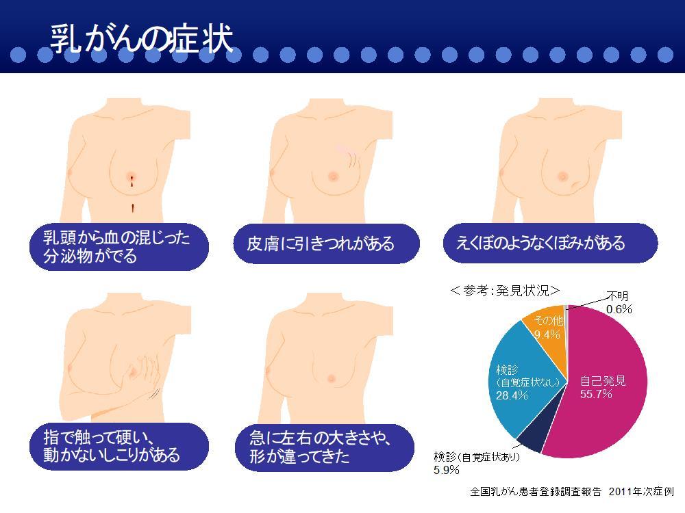 乳がんの症状